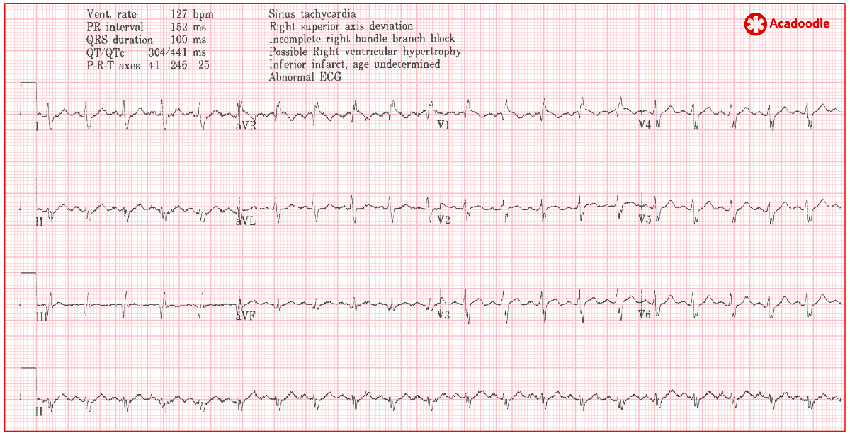 5 ECG Abnormalities Associated with Acute Pulmonary Embolism You Need to  Know